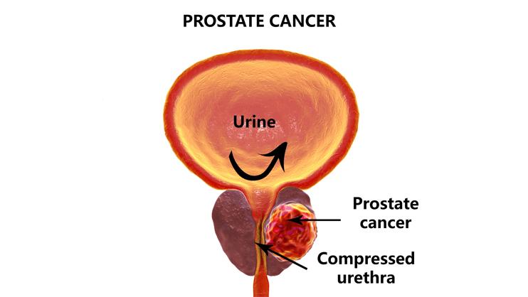Prevention Of Prostate Cancer